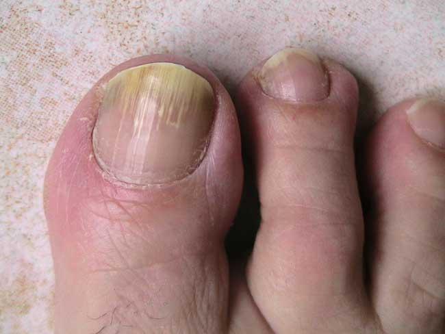 taches sur les ongles des pieds